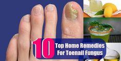 Top 10 Home Remedies for Toenail Fungus #top10 #homeremedies #toenailfungus