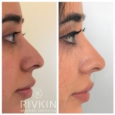 45 Best Dr  Rivkin's Non Surgical Nose Job images in 2019