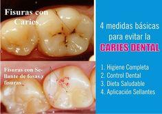 Video: 4 medidas básicas para evitar la Caries Dental   Directorio Odontológico