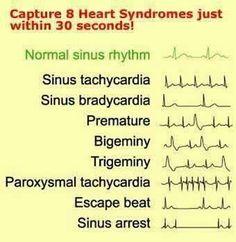 Reading EKGs