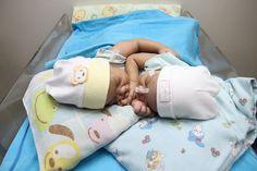 Jalani Perawatan di Bandung, Bayi Asal Ciamis Ini Terlahir Kembar Siam - http://www.rancahpost.co.id/20160960969/jalani-perawatan-di-bandung-bayi-asal-ciamis-ini-terlahir-kembar-siam/