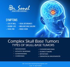Symptoms ✔️ Loss of Smell ✔️ Hearing Loss ✔️ Facial Pain ✔️ Visual Disturbances ✔️ Imbalance While Walking ✔️ Double Vision Get Appointment on with Dr. Spine Surgery, Double Vision, Best Hospitals, Surgery Recovery, Back Pain, Facial, Walking, Skull, Base
