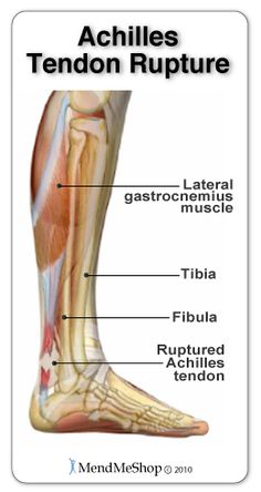 achilles tendon rupture treatment pdf