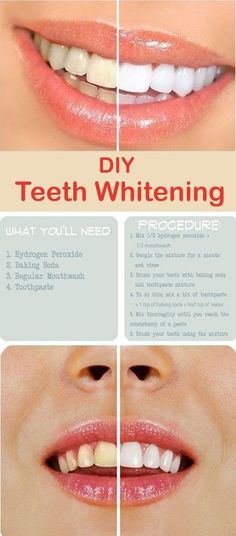 You can have white teeth not only through expensive procedures. Teeth whitening can be done also at home. You will need – tooth