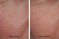 pores dilatés normaux (1)