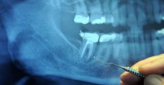 97% of Terminal Cancer Patients Previously Had This Dental Procedure- a root canal. What to do now and why.