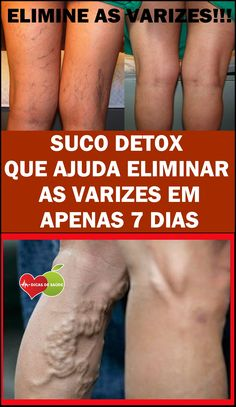 Os 5 Sucos Para Eliminar as Varizes em 1 Semana Shake Diet, Vicks Vaporub, Health Advice, Health Care, Top Skin Care Products, Lose Weight, Weight Loss, Varicose Veins, Skin Food