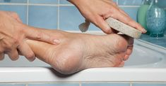 Never try to remove calluses by cutting or slicing them. The risk of infection is too great. Besides, there are easier, less painful ways to remove a callus. It's quite simple to do, and you can use items that are already in your home.