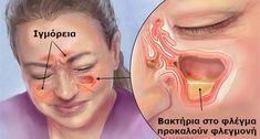 Αυτή είναι η Σπιτική Συνταγή που Ξεβουλώνει Αποτελεσματικά την Μύτη και Θεραπεύει την Ιγμορίτιδα με Φυσικό Τρόπο! -idiva.gr