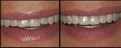 Cosmetic Dentistry: Before and After Smile's rough edges smoothed by enamel shaping Veneers Teeth, Dental Veneers, Teeth Bonding, Teeth Shape, Tooth Enamel, Teeth Braces, Dental Procedures, Best Teeth Whitening, Dental Hygiene