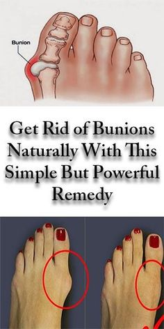 Awesome health tips info are offered on our internet site. Take a look and you wont be sorry you did. Herbal Remedies, Home Remedies, Natural Remedies, Health Remedies, Get Rid Of Bunions, Health Tips, Health Care, Health Articles, Coconut Health Benefits