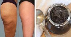 Remedio brasileño de café para la celulitis. No importa el peso de la mujer, cualquiera puede tener celulitis. En el mercado venden muchísimos productos que