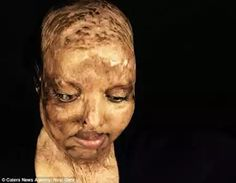 An Indian woman who suffered horrific burns to her face and lost her vision when she was doused in acid by a scorned admirer has revealed how she found the love of her life while recovering in her hospital bed.  Pramodini Roul was just 15 years old when a bike-borne paramilitary soldier threw acid on her face because she had rejected his marriage proposal in an attack that left her with life-altering facial burns and blind in both eyes.  The survivor now 25 who is lovingly called Rani  or…