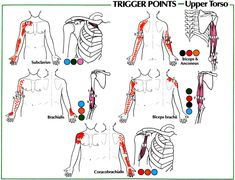 Shoulder Pain Referral Patterns - Upper Torso
