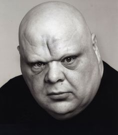 Tony Adkins. Fat Face. Very round bold head. Big nose. Full lower lip. There's a deep verticle wrinkle on his forehead, and he also has big eye bags. His nasolabial fold is also seen in this pic.                                                                                                                                                      More