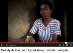 C24/7 on Hypokalemic periodic #paralysis