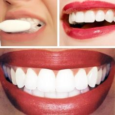 Whitening Home Remedy: 1/4 cup of baking soda lemon juice from half of a lemon. Apply with cotton ball or q-tip. Leave on for no longer than 1 minute, then brush teeth to remove.