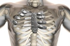Cancer Patient Receives 3D-Printed Titanium Ribcage | IFLScience