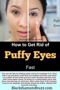 How to Get Rid of Puffy Eyes Fast - Do you get puffy eyes after crying or in the morning and develop under eyes bags? Discover here how to quickly get rid of puffy eyelids naturally at home.