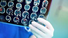 ΥΓΕΙΑΣ ΔΡΟΜΟΙ: Λιγότερα τα εγκεφαλικά για τους 60άρηδες, περισσότ...