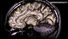 Le cerveau à nu - Reportages avant 2010 - universcience.tv, la WebTV scientifique hebdo
