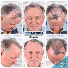 COSMEDICA Dr. Acar (@cosmedicaclinic) • Instagram-foto's en -video's Hair Transplant Results, Mirrored Sunglasses, People, Instagram, People Illustration, Folk