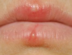 blister on lip picture