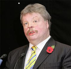 Simon Weston - suffered terrible burns in the Falklands War, 30 years ago.  Has devoted his time to charity work.