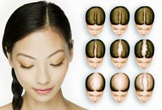 Female pattern balding can happen too!  #balding