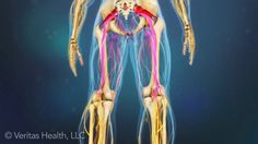 Why Surgery for Sciatica Is Not One-Size-Fits-All