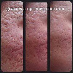 Mejora la textura de la piel con  NeriumOptimera http://beautyskin1.nerium.com