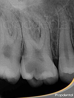 #radiovisiografía inicial del nervio del diente