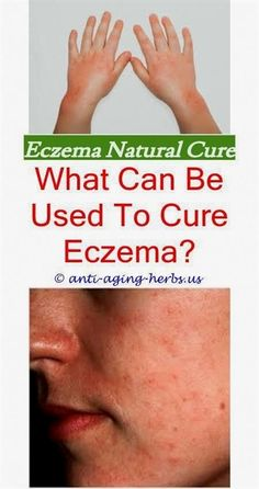 Do you want to get rid of eczema permanently? Then, here are home remedies for eczema.There home treatment will help you cure eczema on the face, hand or legs naturally. Best Eczema Treatment, Foot Fungus Treatment, Home Treatment, Home Remedies For Eczema, Snoring Remedies, Holistic Remedies, What Causes Warts, Health, Tips