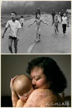 """Napalm Girl"" — Then The Pulitzer Prize-winning photograph, ""The Terror of War"" shows Phan Thị Kim Phúc running naked down the road after being severely burned during a South Vietnamese attack. The photo was taken in Trang Brang by Nick Ut on June 8, 1972. Ut saved Phúc's life, rushing her to the nearest hospital and demanding treatment after flashing his American press credentials. ""Napalm Girl"" — Now Kim Phuc is now 51 years old. As a teenager, Phuc was accepted into medical school but was…"