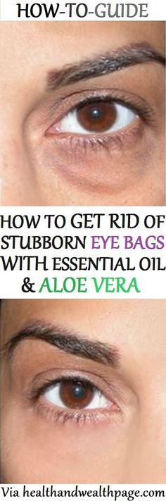 In today's article, we are going to show you, how to get rid of eye bags naturally with essential oil & aloe vera. #AntiagingAloeVera