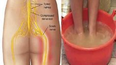 El nervio ciático es el nervio extenso que se desarrolla desde la zona lumbar y desciende hasta las piernas, por lo que si se daña o se genera presión provocará un dolor muy fuerte. Las principales causas de la ciática son las hernias de disco, tumores, lesiones en la pelvis, estenosis raquídea y s #dolorciatico