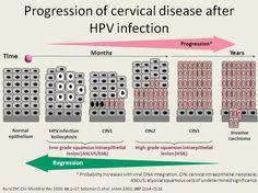 does hpv cause endometrial cancer negi genitale limba
