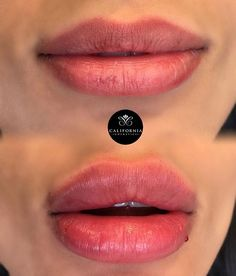 Beautiful plump look created with 1 syringe if Juvederm Ultra Plus XC using our #californiacosmeticstechnique  Tag someone who would love these lippies ✨✨✨ #californiacosmetics #bestlips #selfie #lipinjections #lips #lipshape #lipgoals #newlips #lippies #goals #motd #lipstick #lipaugmentation #juvederm
