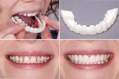 Snap On Veneer Smille-Best Quality Snap On Veneers. Need a Dental Clinic? We Offer Reliable, Comprehensive Dental Care Service for Everyone. Contact Us. Specialized Dental Care Experts Ready to Help You with Your Dental Issues. Veneers Teeth, Dental Veneers, Dental Teeth, Dental Care, Snap On Smile, Misaligned Teeth, Gap Teeth, Teeth Braces, Make Up