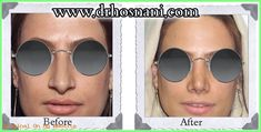 This lady's thick skin nose reshaped natural by nasal width and length reduction. For more similar before and after photos visit the website. Kim Kardashian Before, Crooked Nose, Nose Reshaping, Wide Nose, Rhinoplasty Before And After, Rhinoplasty Surgery, Dark Complexion, Thick Skin, Big Noses
