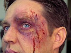 The final bruise. Makeup can supply an easy special effect within anyone's grasp. We asked Dana Nye of the Ben Nye Makeup to walk us through the steps to making a quick black eye, and he went right to work on his model Peter Wilks. Horror Makeup, Zombie Makeup, Sfx Makeup, No Eyeliner Makeup, Eye Makeup Tips, Skull Makeup, Bruises Makeup, Club Makeup, Cuts And Bruises