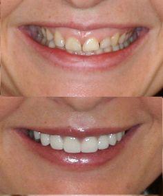 Gum sculpting was used to transform this lady's smile, along with 8 veneers. Dental Veneers, Porcelain Veneers, Smile Teeth, Cosmetic Dentistry, Sculpting, Sculpture, Sculptures