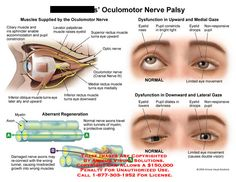 This image shows Branches of oculomotor nerve, eye dysfunction, and aberrant nerve regeneration. Cranial Nerve 3, Opthalmic Technician, Cranial Sacral Therapy, Nerve Palsy, Optic Nerve, Myasthenia Gravis, Graves Disease, Nursing School Tips, Health And Fitness