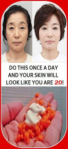 All women dream to have the perfect skin, without wrinkles. Hence, a lot of celebrities use Botox in order to look younger, however, this is not a cheap treatment and not everyone can afford to pra… Health And Fitness Articles, Health Tips, Health Fitness, Diy Skin Care, Skin Care Tips, Beauty Skin, Health And Beauty, Sagging Skin, Perfect Skin