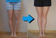 Read on to discover exactly what you need to do to fix your bow legs once and for all, and enjoy perfectly straight and attractive legs for the rest of your life!
