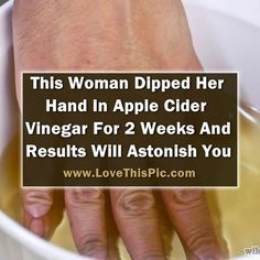 She Dipped Her Hand In Apple Cider Vinegar For 2 Weeks. When You Read You Will…