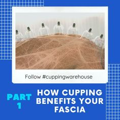 What Is  Fascia and How Can Cupping Therapy Benefit it? Everyone knows that the skeleton supports the body, but few could tell you how the muscles, organs, nerves and blood vessels are kept in place. Far from free-floating in your abdominal cavities, the body's internal tissues are connected, supported and protected by a structure called the fascia.  This little-known and understudied structure is, in fact, one of the most vital components of our bodies, and is just as important for movement…