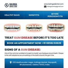 Dental Teeth, Dental Care, Dentist Near Me, Appointments, Clinic, Treats, Healthy, Book