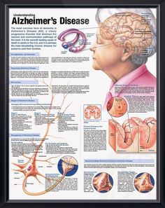 Understanding Alzheimer's Disease anatomy poster discusses the aging brain, dementia and methods of diagnosing AD for patient caregiver education. Neurology for doctors and nurses. November is Alzheimer's Awareness month. Alzheimer Care, Dementia Care, Alzheimer's And Dementia, Dementia Types, Medical Posters, Alzheimers Awareness, Alzheimers Quotes, Elderly Care, Medical Information