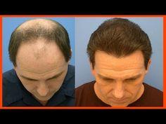 CALVICE TEM CURA! Roberto de Luca Revela Cura no tratamento para calvice - YouTube